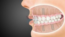 Get Best - Dental Implants Dubai - Call Now