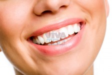 Looking For Best Treatment For Veneers In Dubai? Call Now