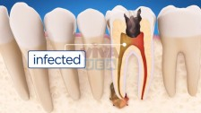 Root Canal Treatment Services in Dubai