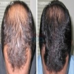 Hair Loss Treatments for Male in Dubai