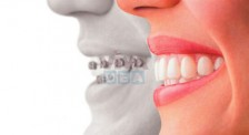Best Orthodontist Clinic in Dubai