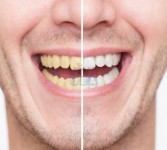 Teeth Whitening Clinic Dubai