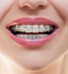 Ceramic Braces in Dubai