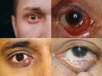 Eye Cancer Treatment In India