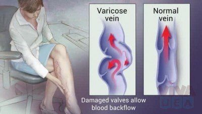VenoCare Clinic - One Stop Clinic for Varicose Veins Treatment